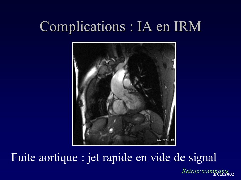 Complications : IA en IRM