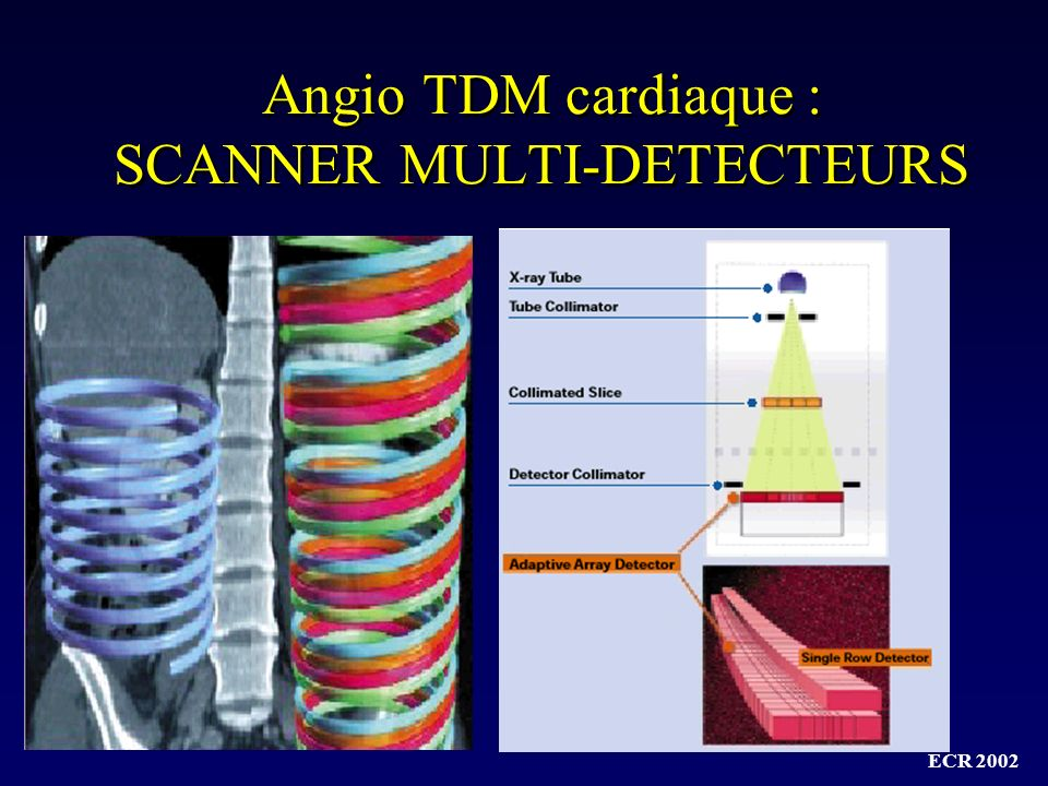 Angio TDM cardiaque : SCANNER MULTI-DETECTEURS