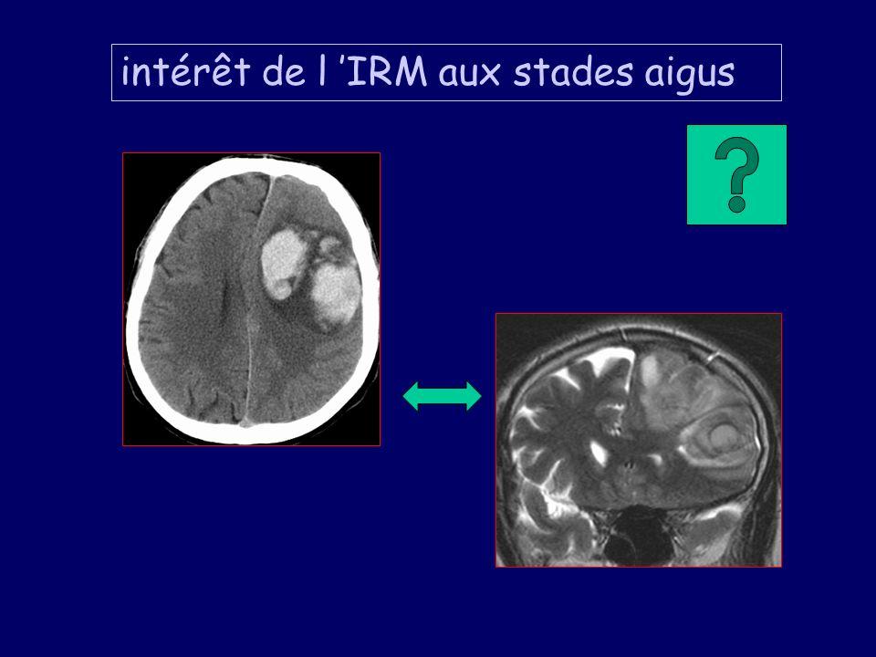 intérêt de l 'IRM aux stades aigus