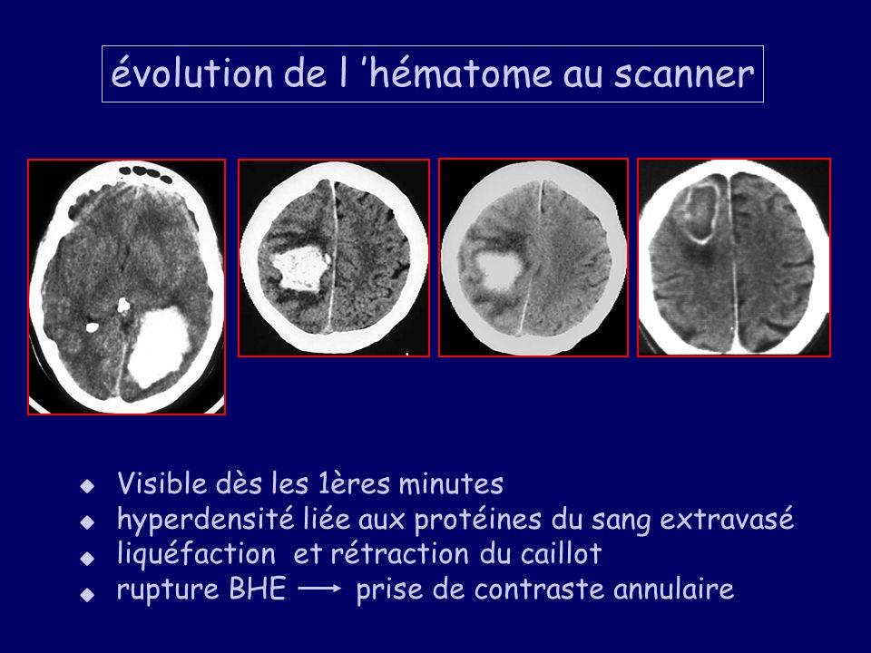 évolution de l 'hématome au scanner