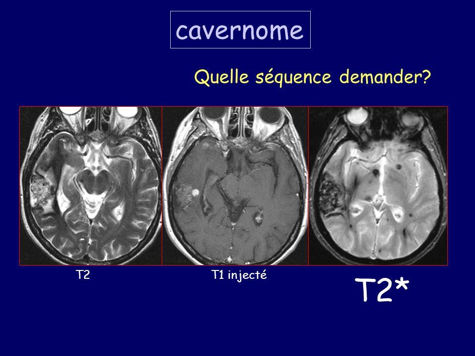 cavernome Quelle séquence demander T2 T1 injecté T2*
