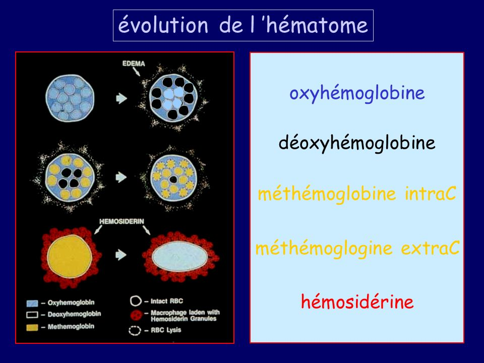 évolution de l 'hématome