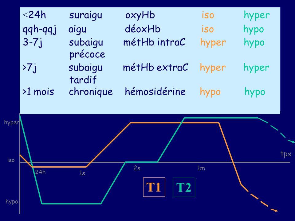 T1 T2 <24h suraigu oxyHb iso hyper qqh-qqj aigu déoxHb iso hypo