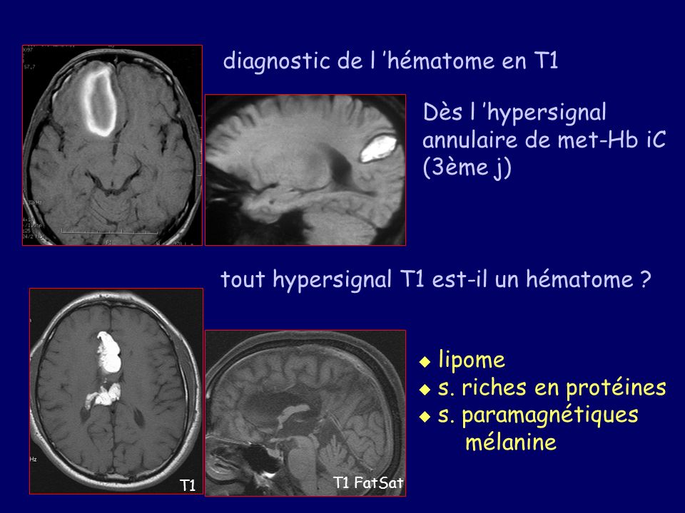 diagnostic de l 'hématome en T1