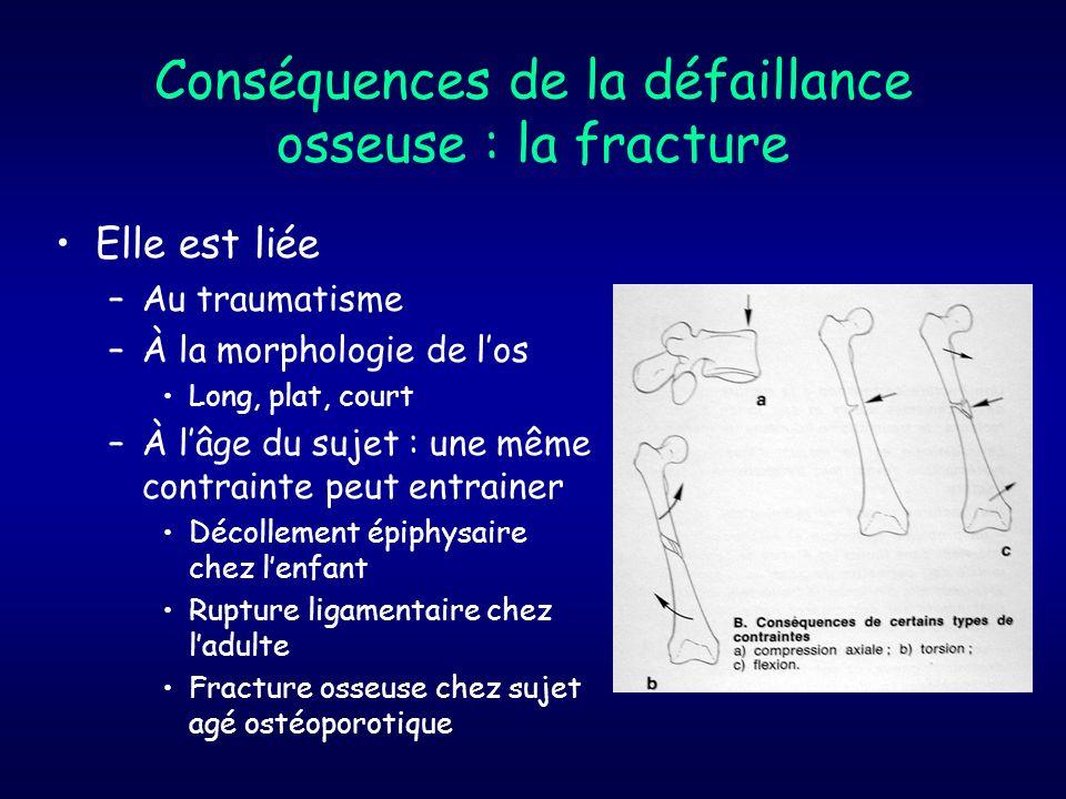 Conséquences de la défaillance osseuse : la fracture