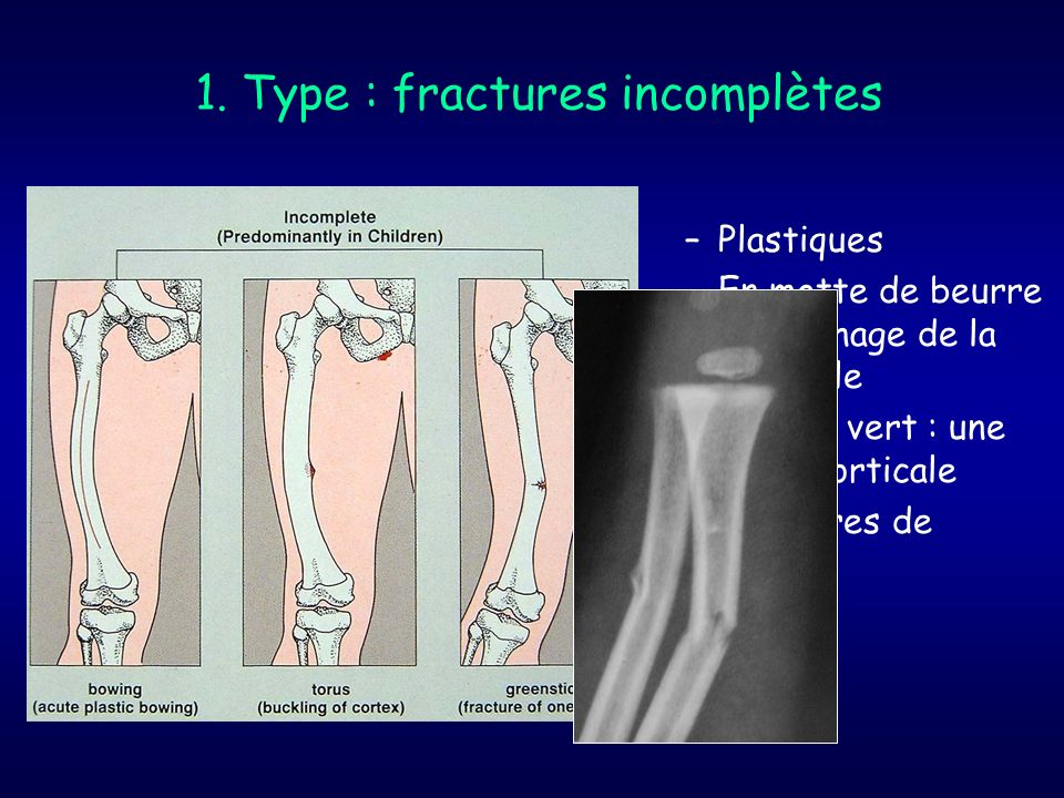 1. Type : fractures incomplètes