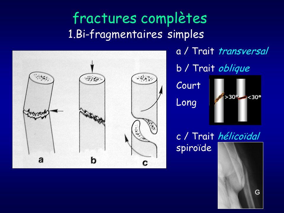 1.Bi-fragmentaires simples