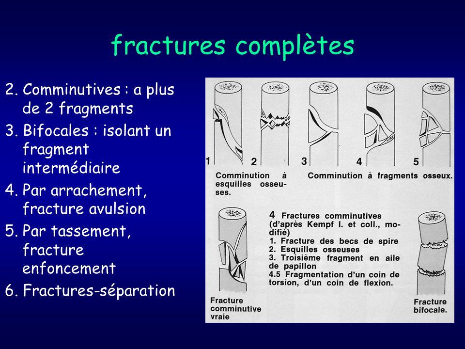 fractures complètes 2. Comminutives : a plus de 2 fragments