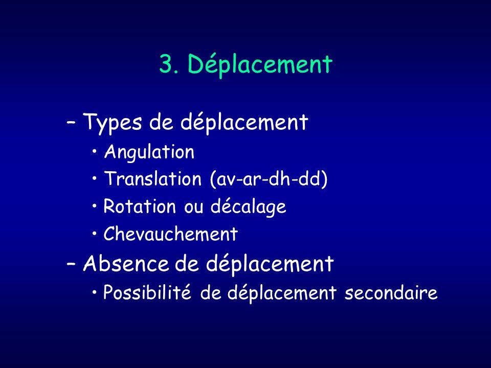 3. Déplacement Types de déplacement Absence de déplacement Angulation
