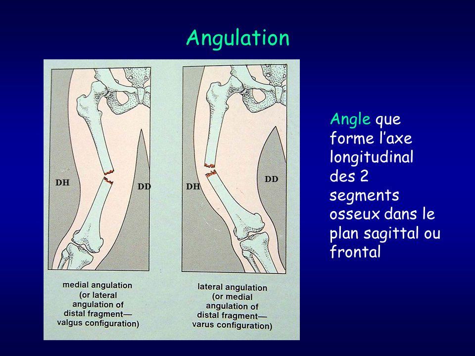 Angulation Angle que forme l'axe longitudinal des 2 segments osseux dans le plan sagittal ou frontal.