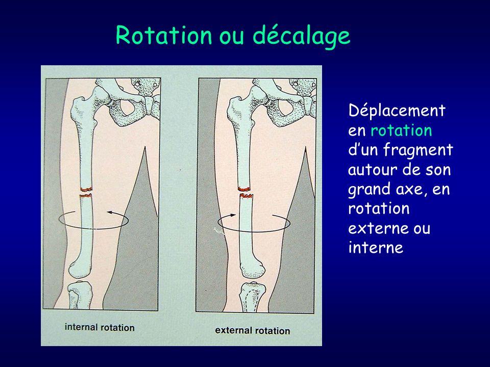Rotation ou décalage Déplacement en rotation d'un fragment autour de son grand axe, en rotation externe ou interne.