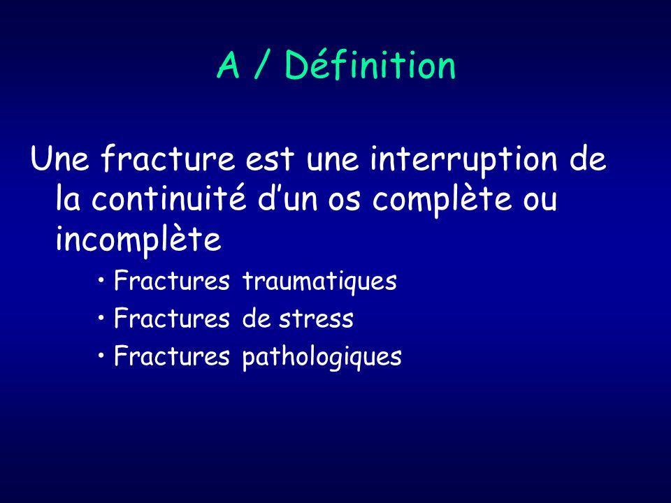 A / Définition Une fracture est une interruption de la continuité d'un os complète ou incomplète. Fractures traumatiques.