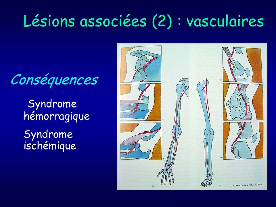 Lésions associées (2) : vasculaires