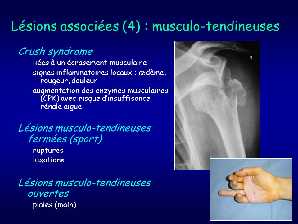 Lésions associées (4) : musculo-tendineuses