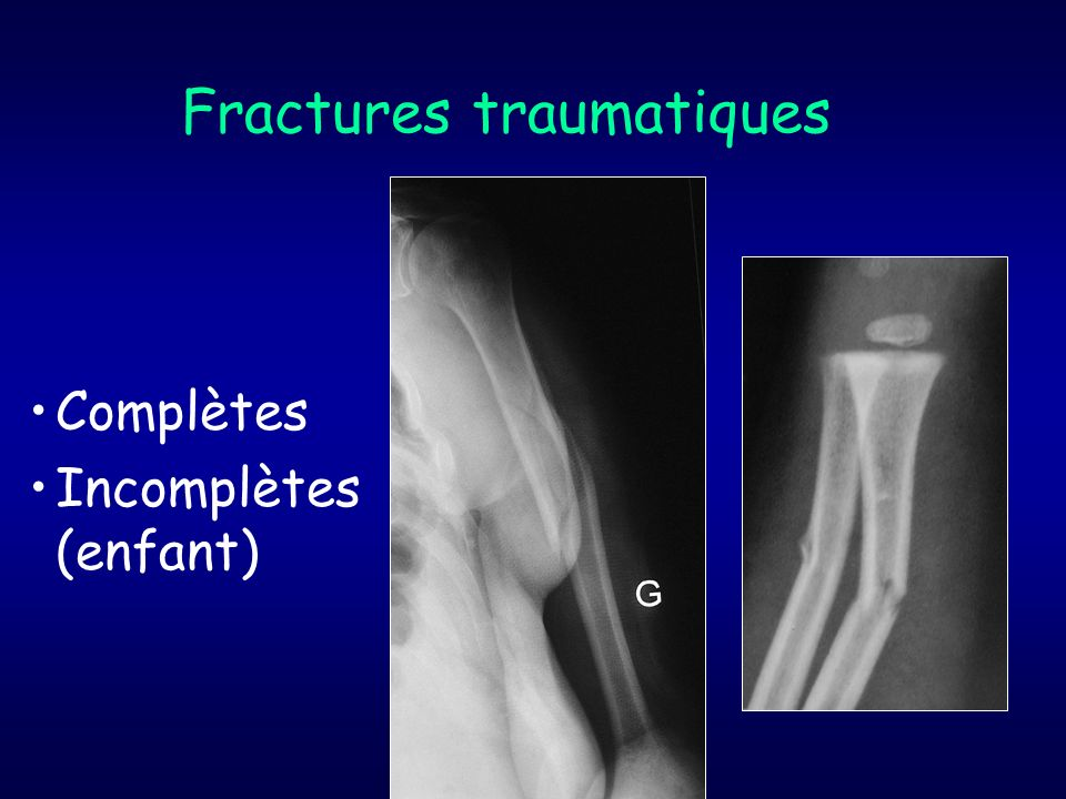 Fractures traumatiques
