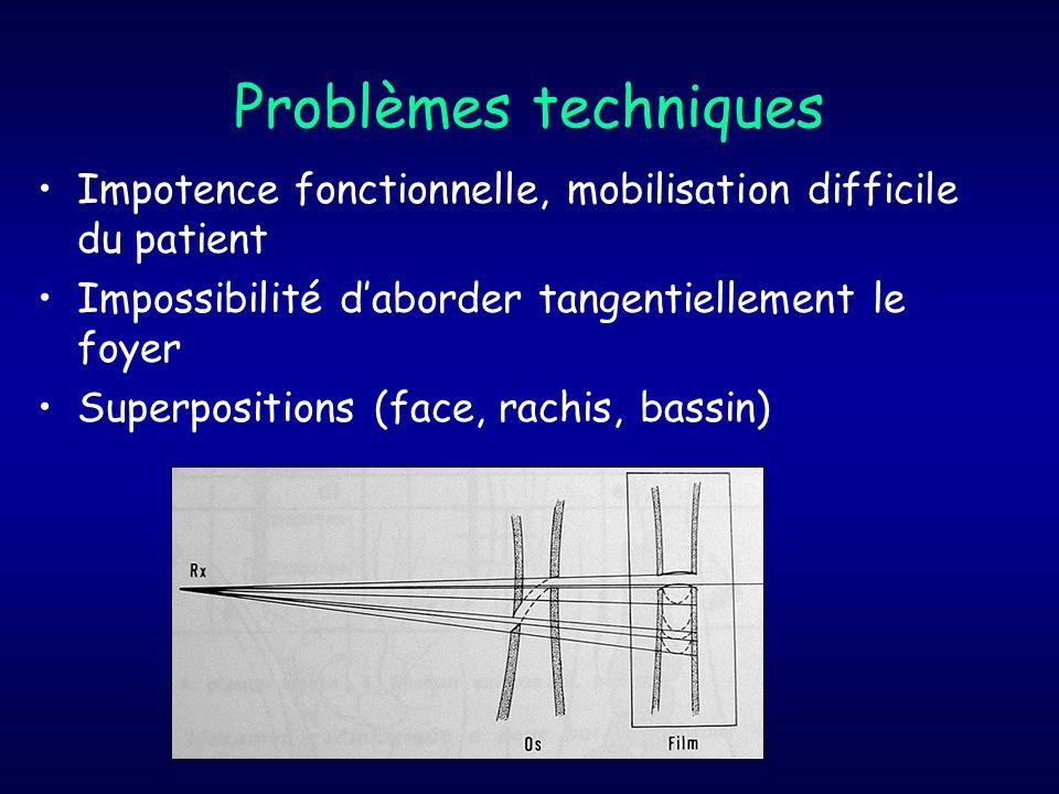 Problèmes techniques Impotence fonctionnelle, mobilisation difficile du patient. Impossibilité d'aborder tangentiellement le foyer.
