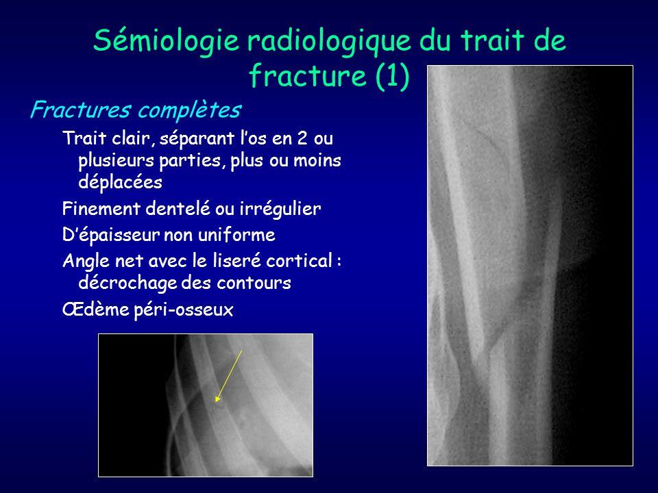 Sémiologie radiologique du trait de fracture (1)