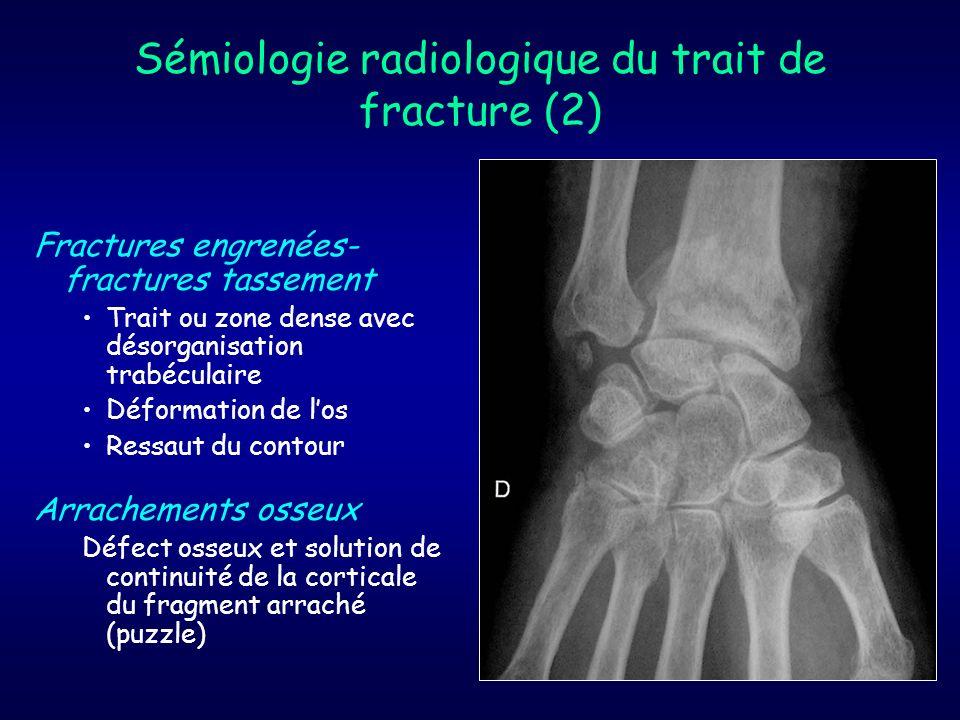 Sémiologie radiologique du trait de fracture (2)