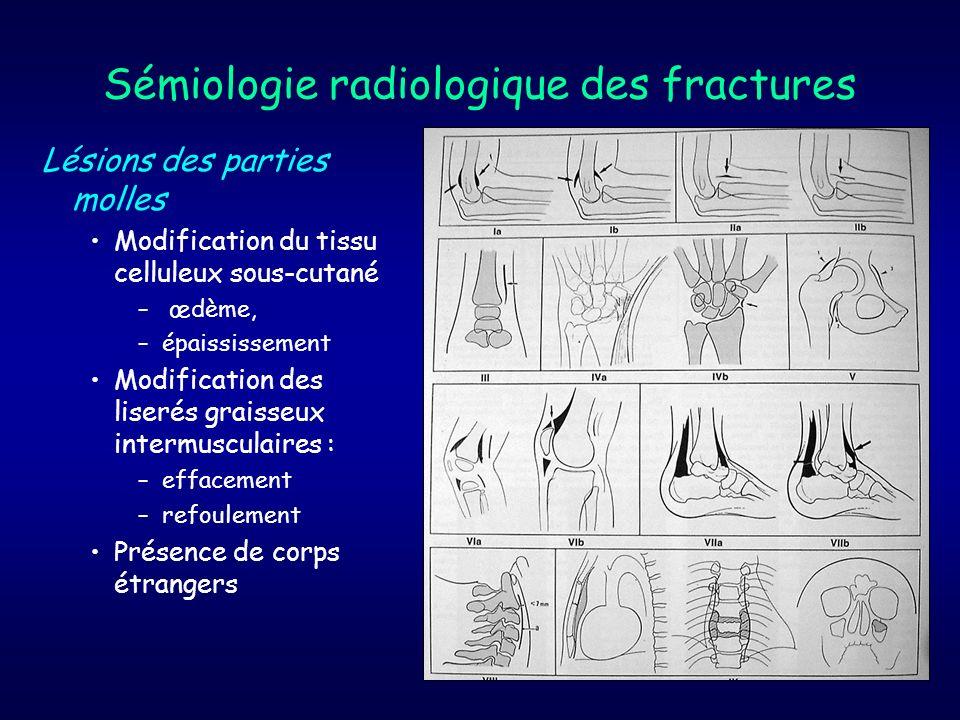 Sémiologie radiologique des fractures