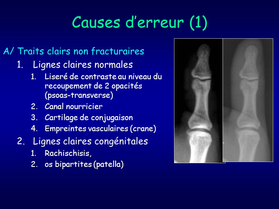 Causes d'erreur (1) A/ Traits clairs non fracturaires