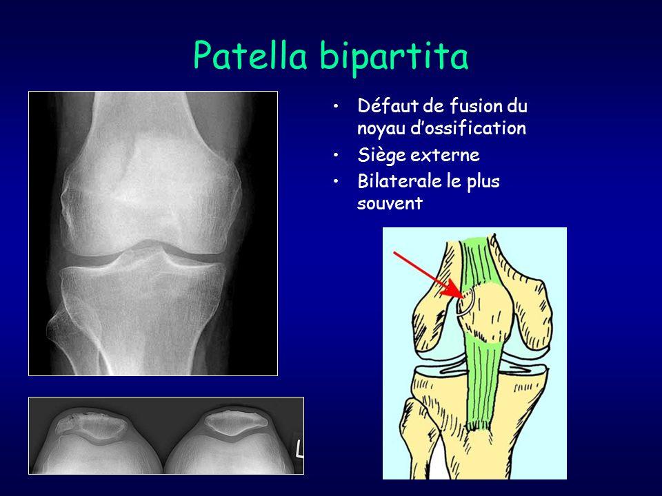 Patella bipartita Défaut de fusion du noyau d'ossification