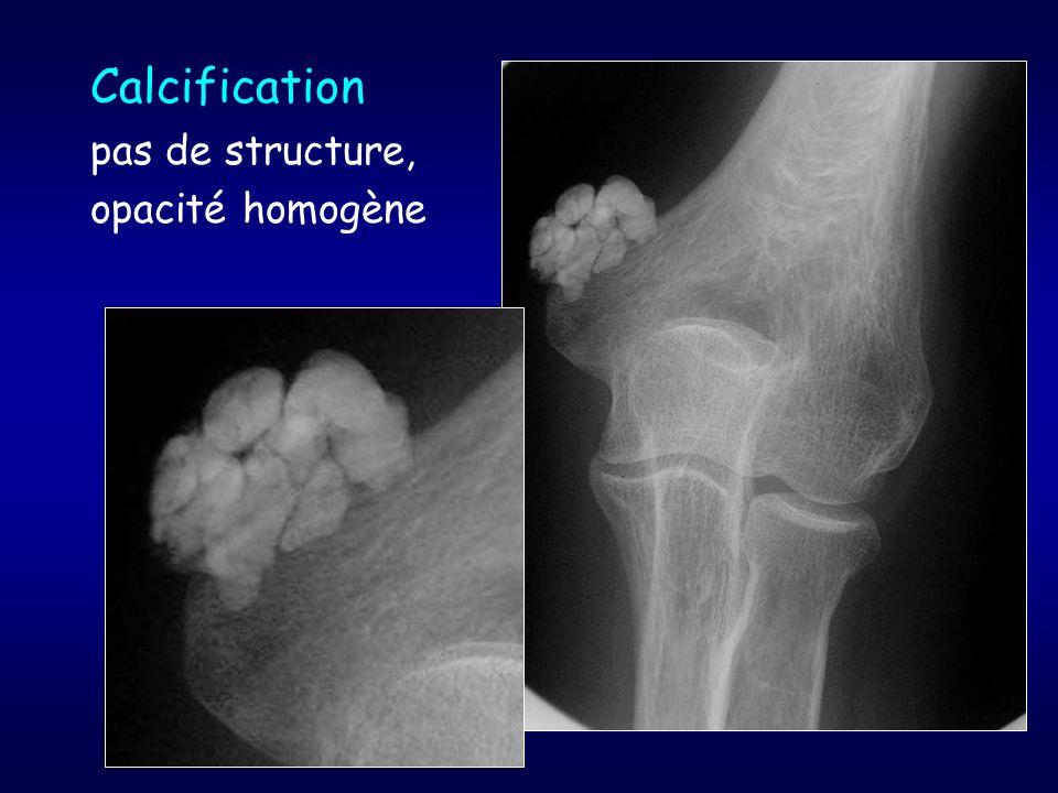 Calcification pas de structure, opacité homogène