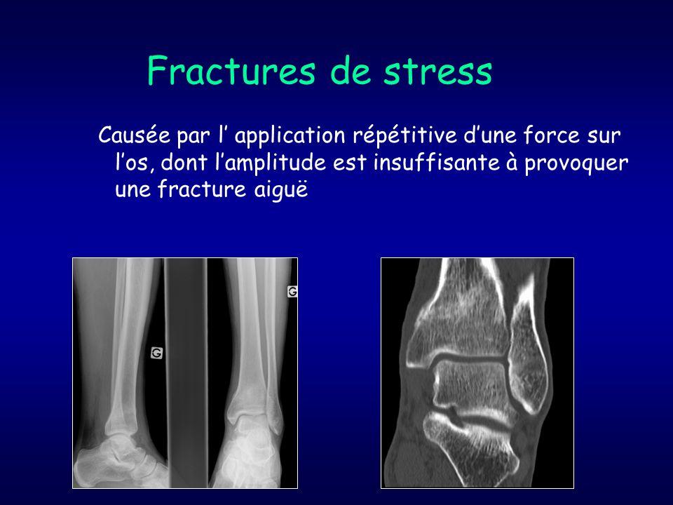Fractures de stress Causée par l' application répétitive d'une force sur l'os, dont l'amplitude est insuffisante à provoquer une fracture aiguë.