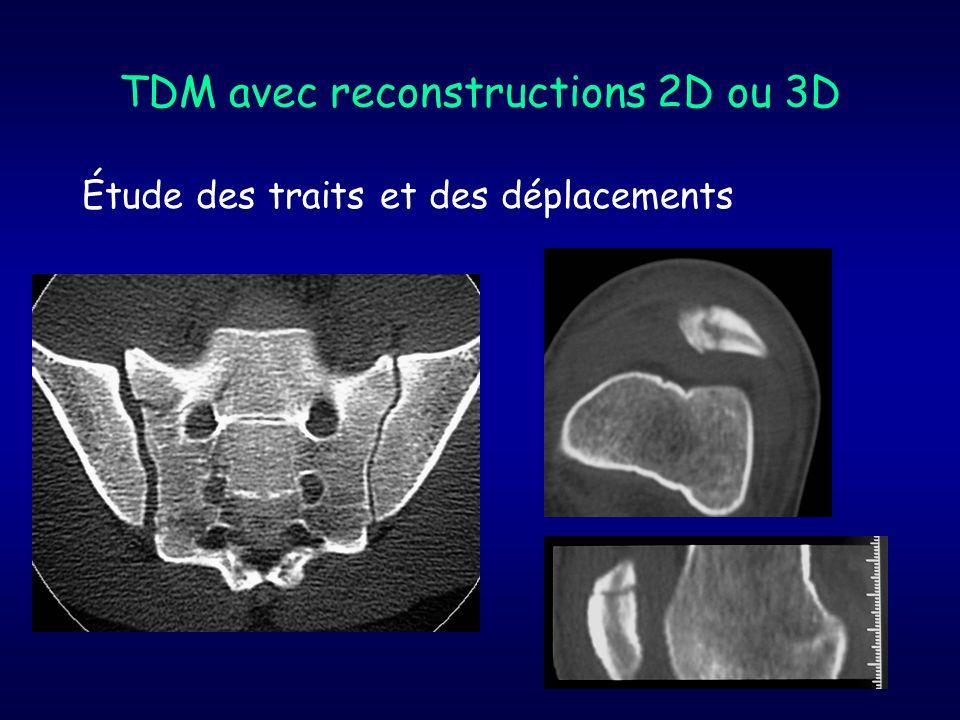 TDM avec reconstructions 2D ou 3D