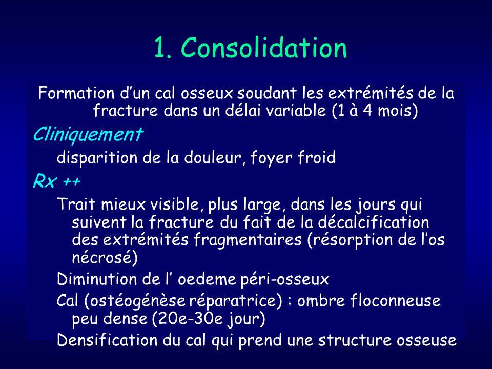 1. Consolidation Cliniquement Rx ++