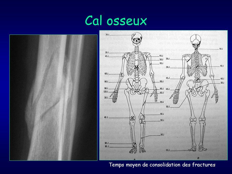 Cal osseux Temps moyen de consolidation des fractures