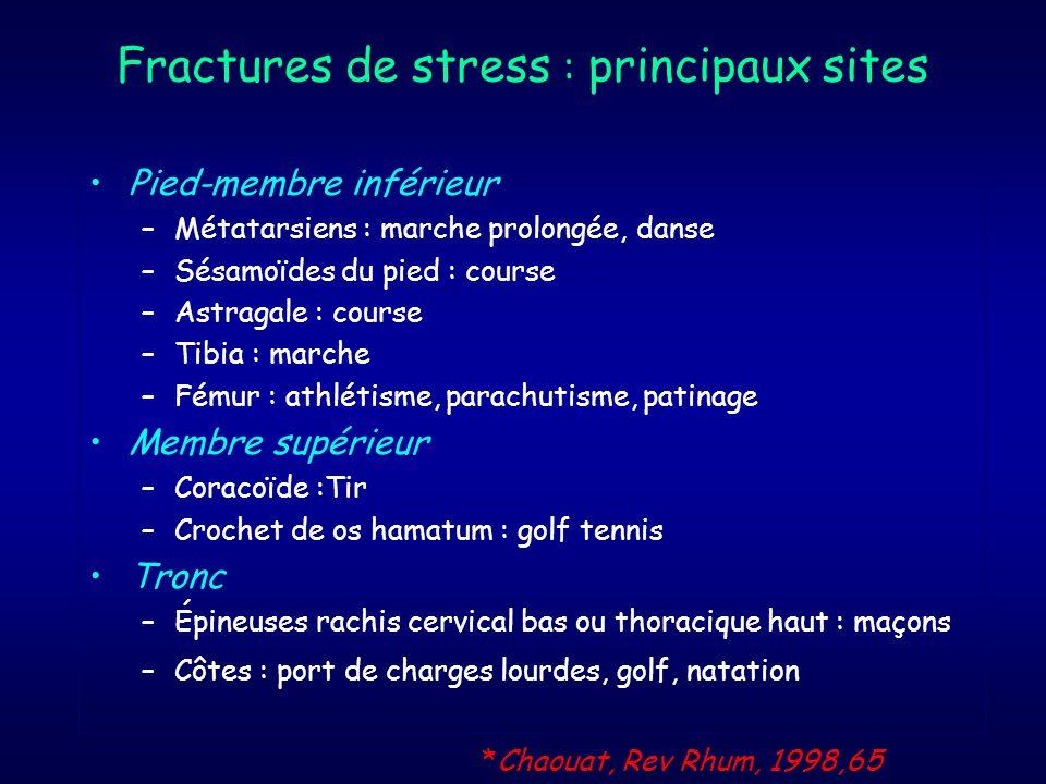 Fractures de stress : principaux sites