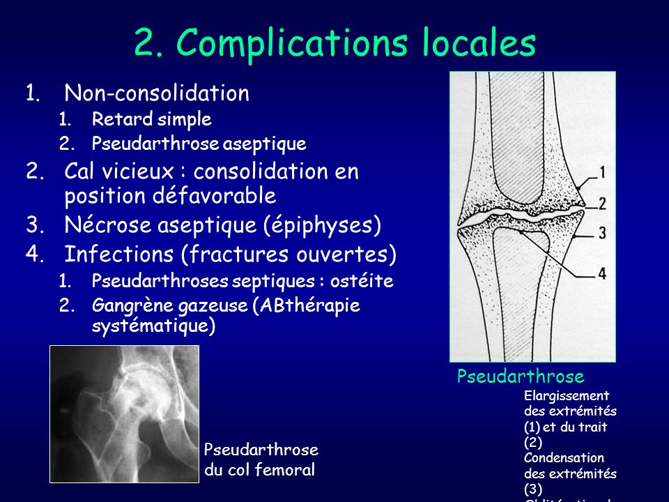 2. Complications locales