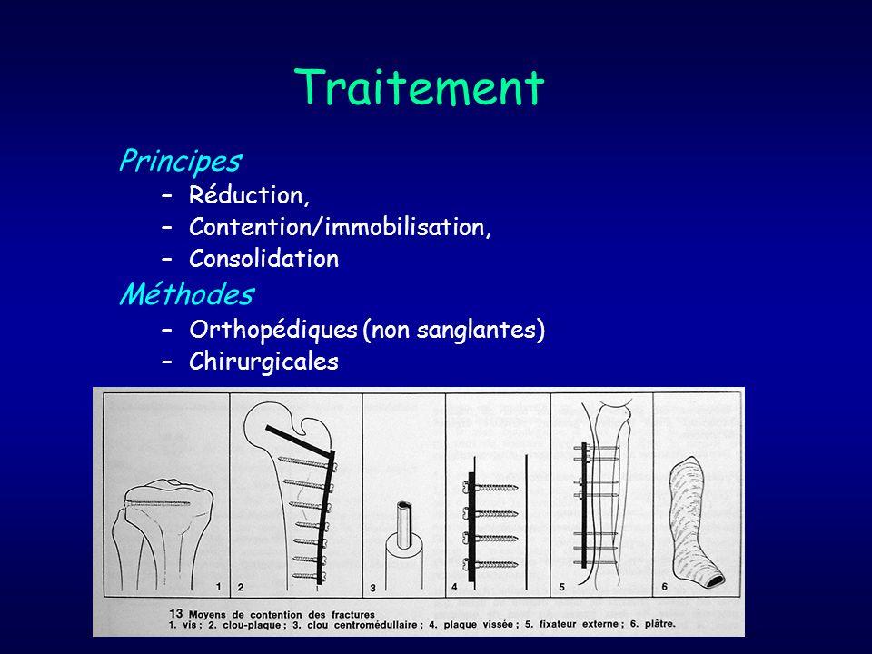 Traitement Principes Méthodes Réduction, Contention/immobilisation,
