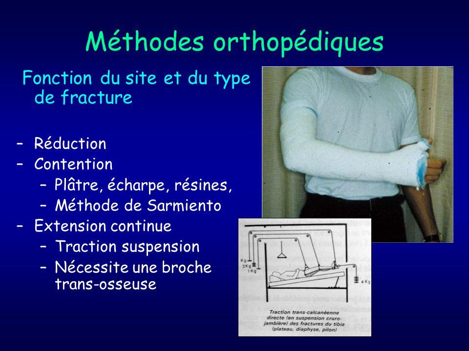 Méthodes orthopédiques