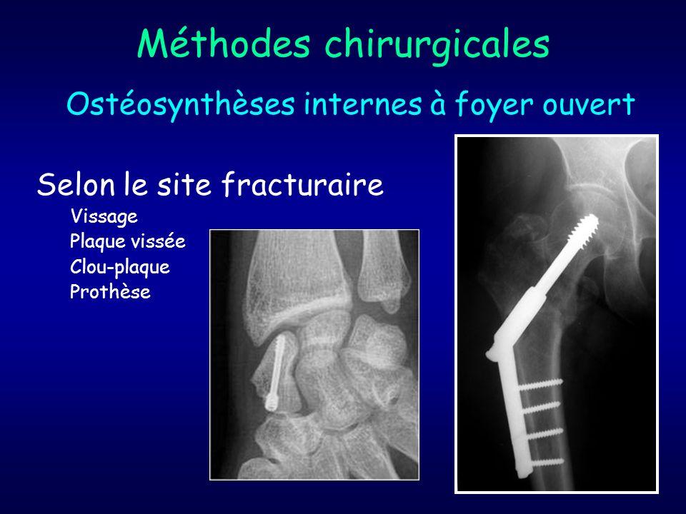Méthodes chirurgicales