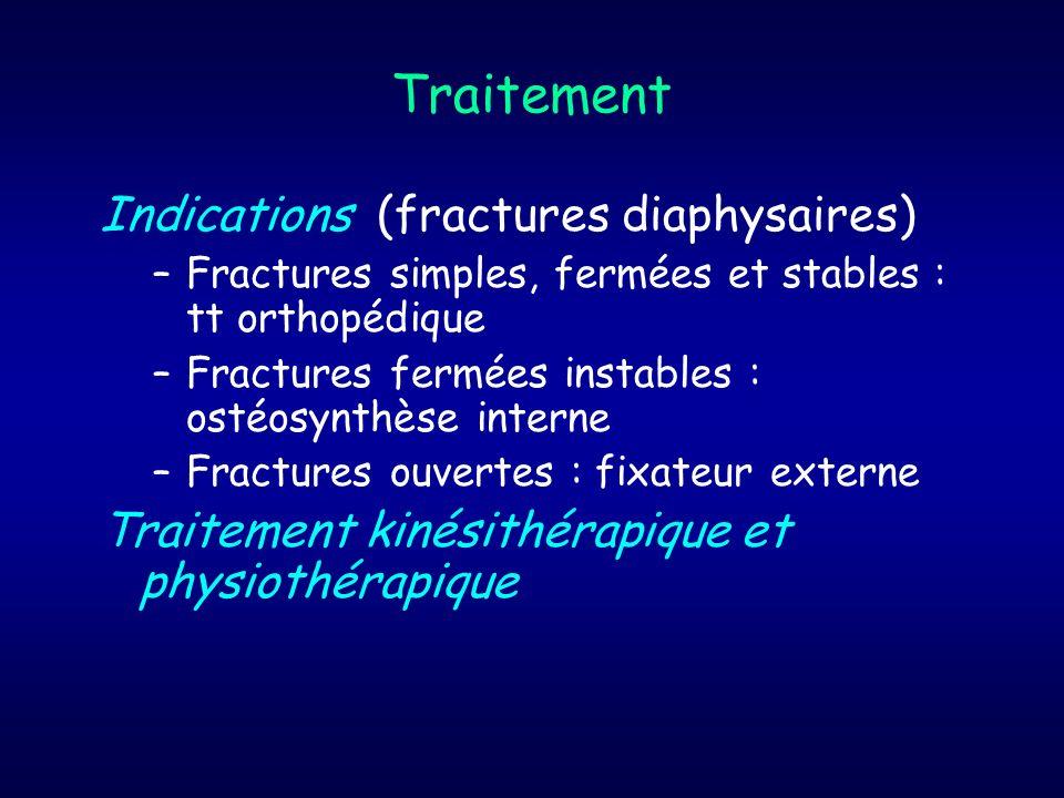 Traitement Indications (fractures diaphysaires)