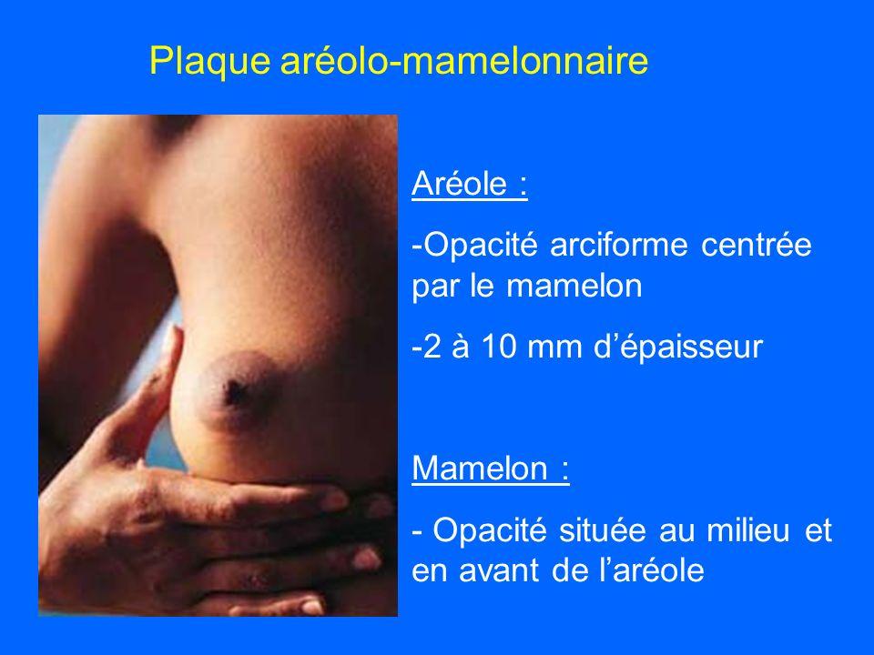 Plaque aréolo-mamelonnaire