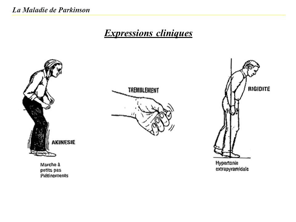 Expressions cliniques