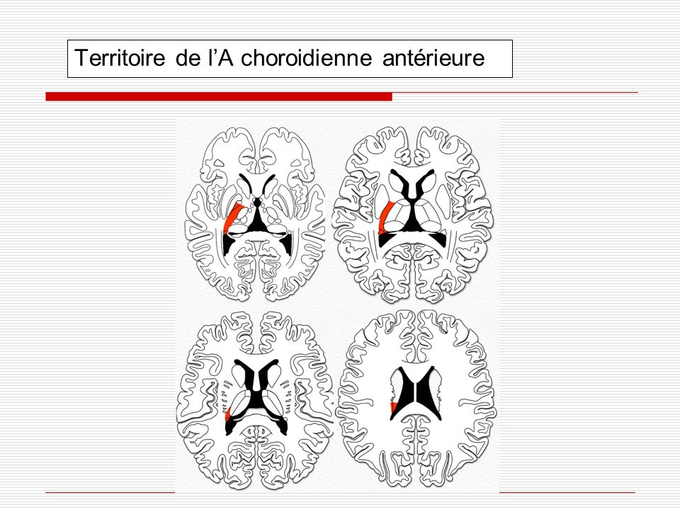 Territoire de l'A choroidienne antérieure