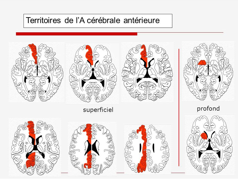 Territoires de l'A cérébrale antérieure