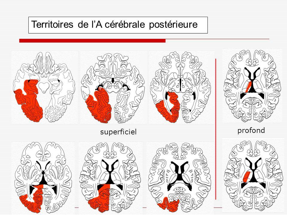 Territoires de l'A cérébrale postérieure