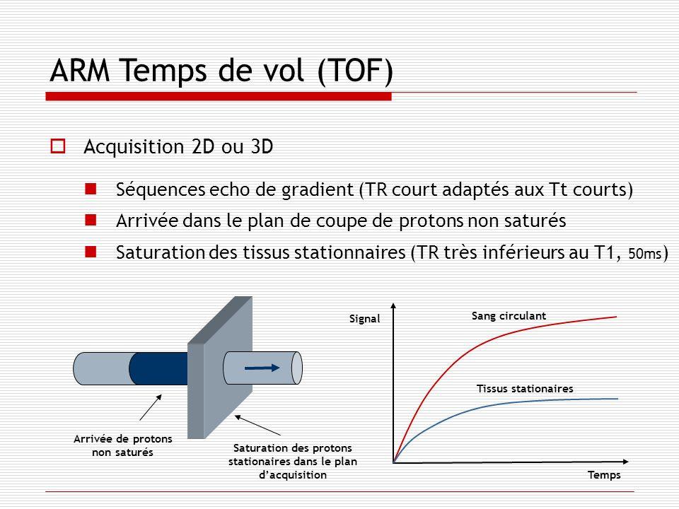 ARM Temps de vol (TOF) Acquisition 2D ou 3D