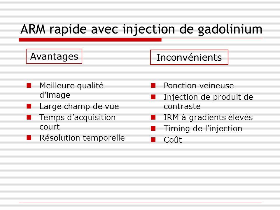 ARM rapide avec injection de gadolinium