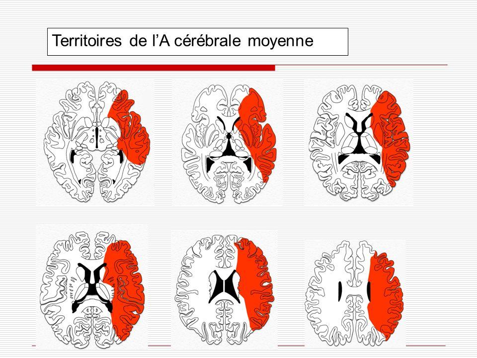 Territoires de l'A cérébrale moyenne