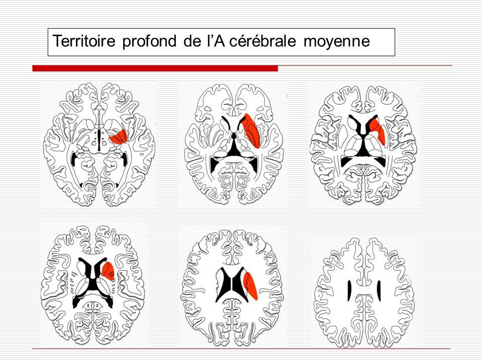 Territoire profond de l'A cérébrale moyenne