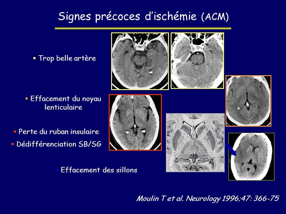 Signes précoces d'ischémie (ACM)