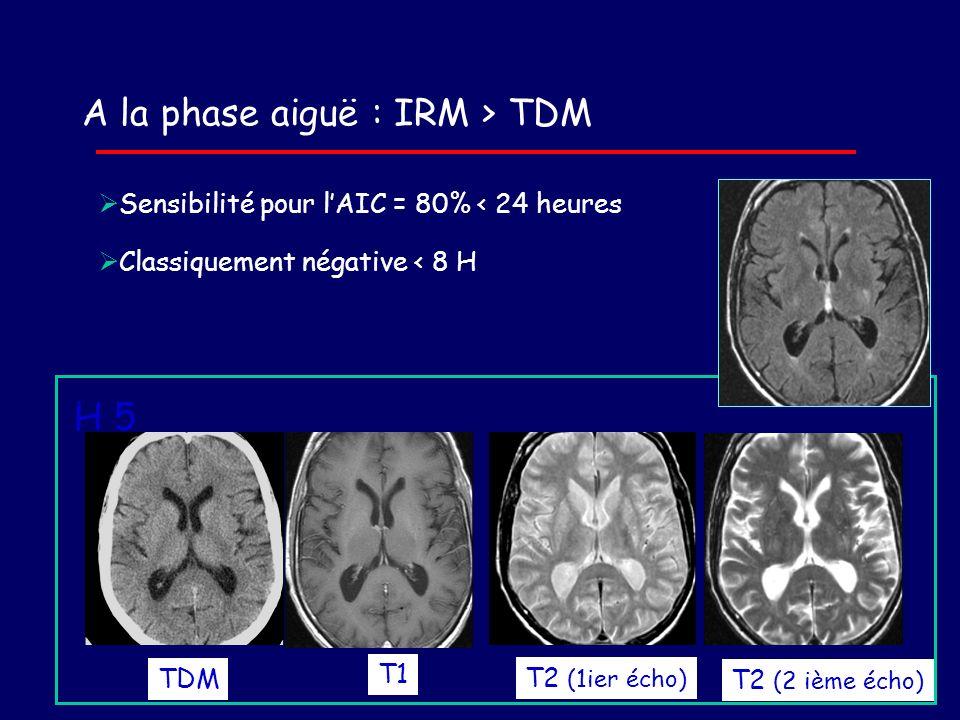 A la phase aiguë : IRM > TDM