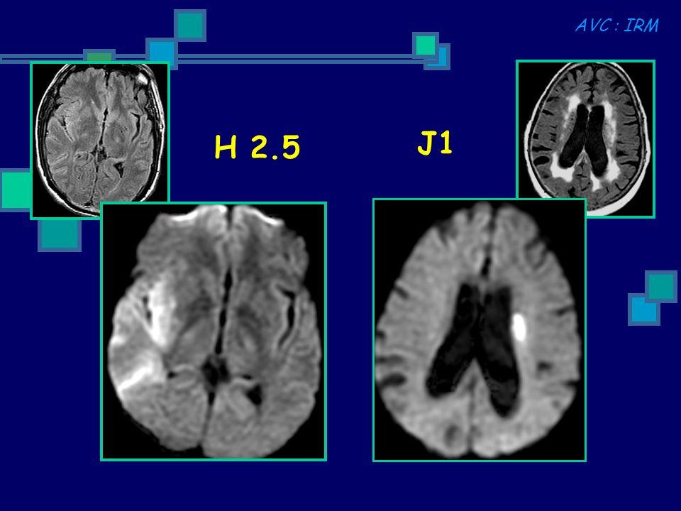 AVC : IRM J1 H 2.5