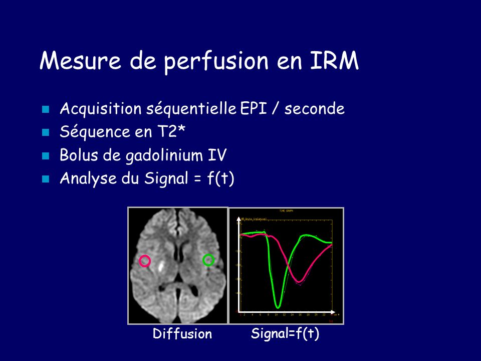 Mesure de perfusion en IRM