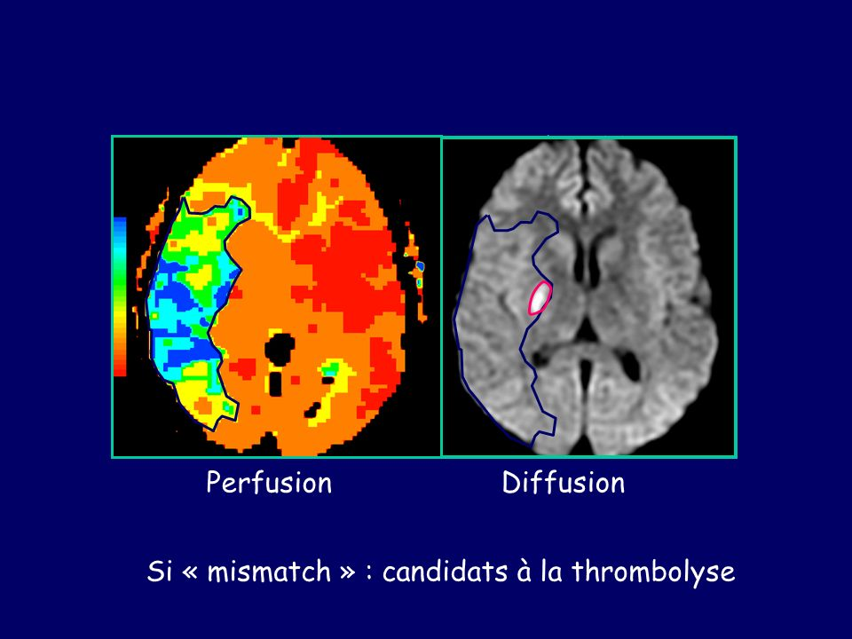 «Mismatch » Perfusion / Diffusion